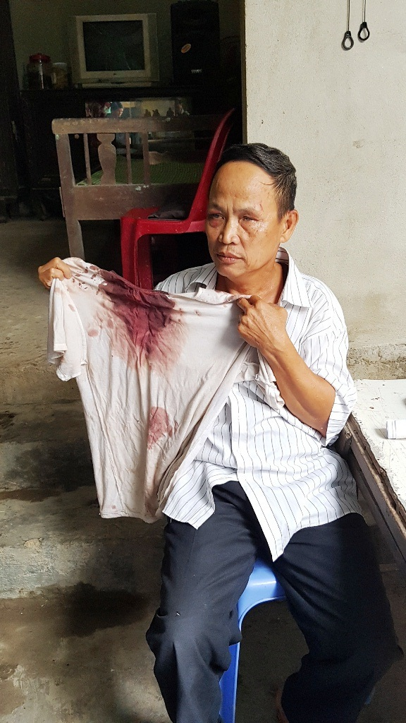 Thừa Thiên Huế: Trưởng hội người mù và con trai bị vào tận nhà đánh trọng thương - 1