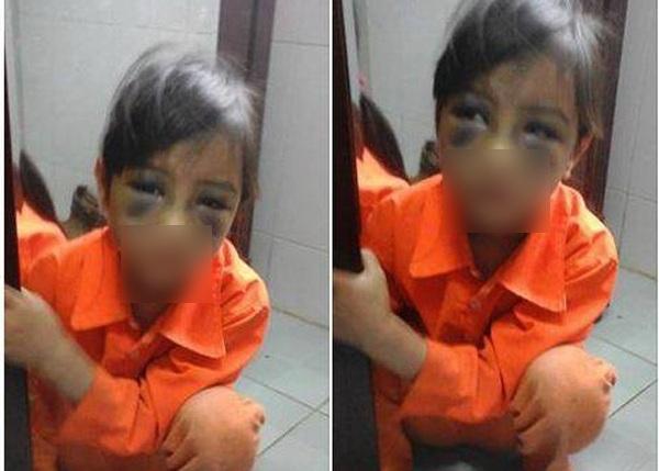 Cháu bé với khuôn mặt tím tái do bị cô giáo đánh