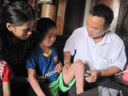 Anh Nguyễn Văn Bền thăm khám bệnh tại nhà cho cháu Kỳ.
