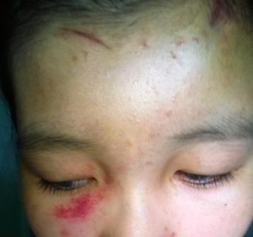 Nữ sinh L.T.Q bị nhiều vết trầy xước trên mặt, trán.