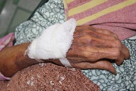 Bà S. chống cự quyết liệt nên bị nhiều vết thương ở tay
