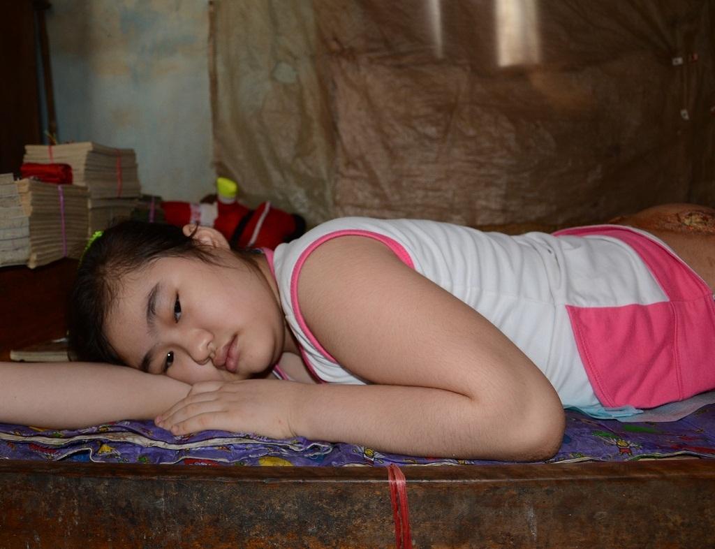 Xót xa bé gái 11 tuổi bại liệt nằm thối thịt