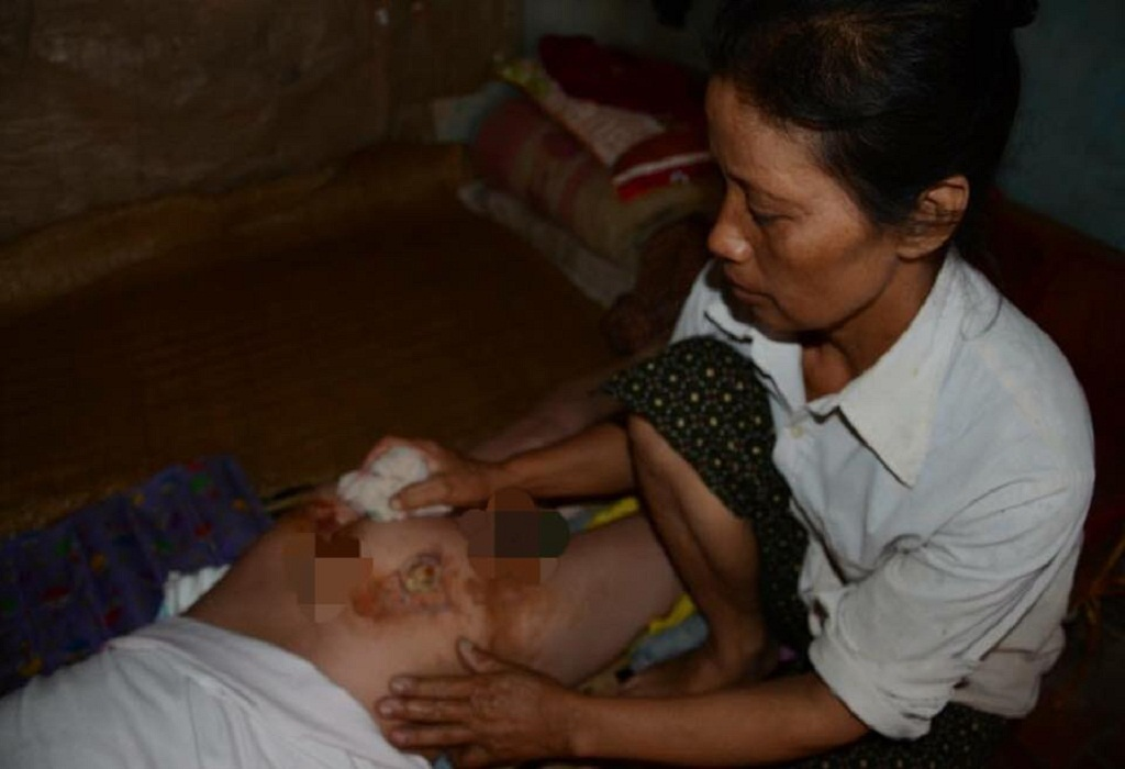 Hàng ngày chị Thu chăm sóc cho con mà lòng đau như cắt.