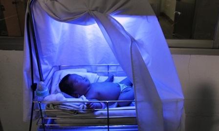 BV quận 2 đang chiếu đèn điều trị bệnh vàng da cho cháu bé.