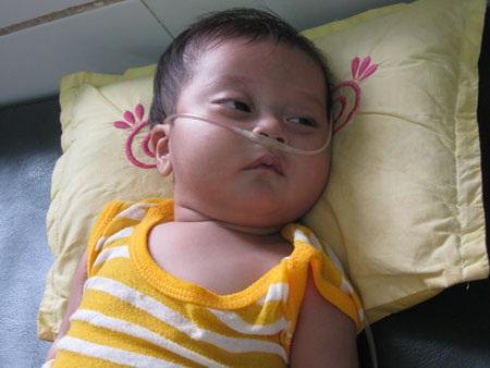 Trái tim bé 7 tháng tuổi có nguy cơ ngừng đập - 1