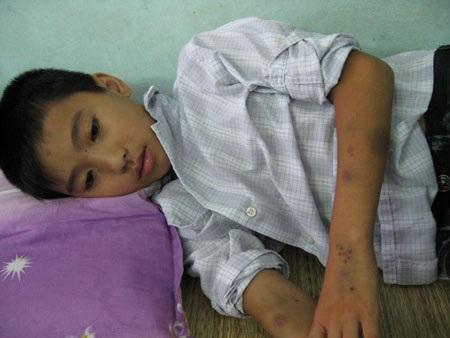 Nỗi buồn nặng trĩu  tâm can cậu bé 13 tuổi trên giường bệnh - 1