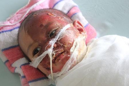 Nghịch nước sôi, bé 15 tháng tuổi hỏng nửa khuôn mặt