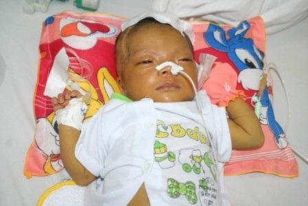 Xót xa trước bé gái 2 tháng tuổi bị liệt nửa mặt