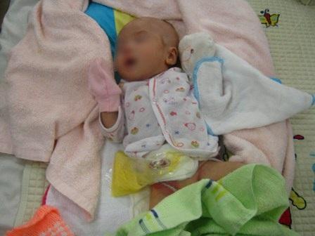 Thiếu lỗ hậu môn là bệnh hiếm gặp ở trẻ sơ sinh