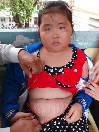 Nhiều vùng da trên cơ thể bé Linh rạn nứt như bà đẻ