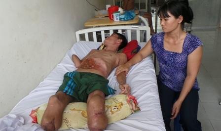 Vết thương vùng đoạn chi nhiễm trùng khiến anh Vinh phải nhập viện