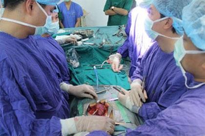 Cuộc phẫu thuật cắt ghép thận không cùng huyết thống tại bệnh viện 198