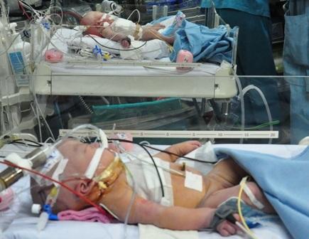 Hai bé được hồi sức tích cực trong sự theo dõi chặt chẽ của bệnh viện