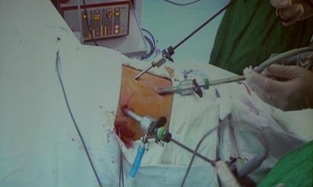 Ca nội soi thực hiện tại bệnh viện Bình Dân