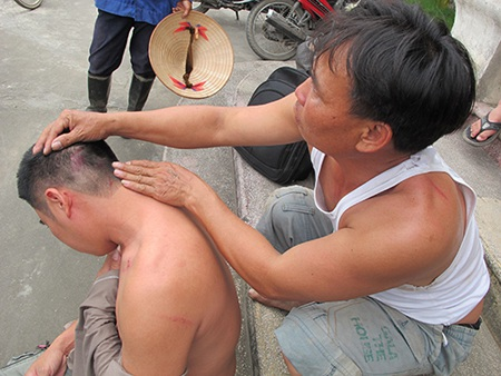 Một người dân xã Đại Thắng, huyện Tiên Lãng - Hải Phòng bị thương sau vụ hành hung