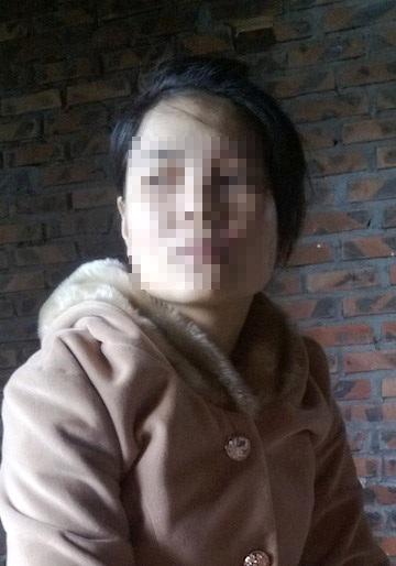 Chị Nguyễn Thị Th. đã bị những kẻ côn đồ tạt axit và doạ dẫm liên tục trong một thời gian dài