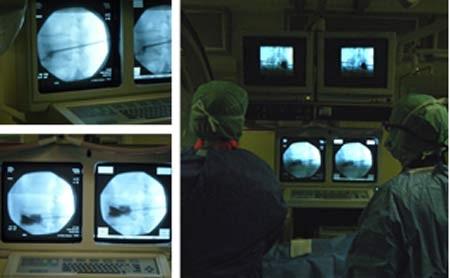 Cơ hội cho bệnh nhân lún xẹp cột sống