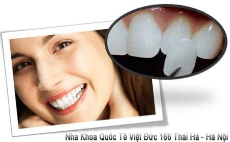 Nụ cười rạng rỡ hơn với răng sứ Veneer