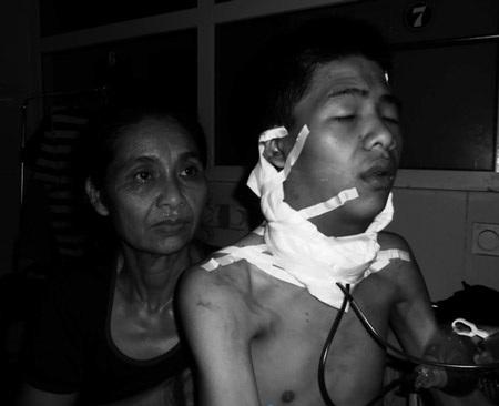 Bệnh nhân Cảnh 3 giờ sau cuộc mổ