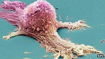 Ung thư buồng trứng là loại ung thư phổ biến và đứng thứ 5 ở phụ nữ Anh.