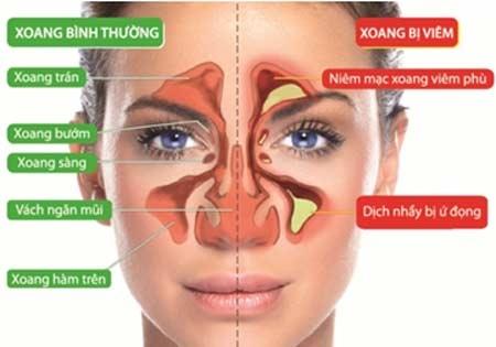 Chứng nghẹt mũi xoang diễn ra như thế nào