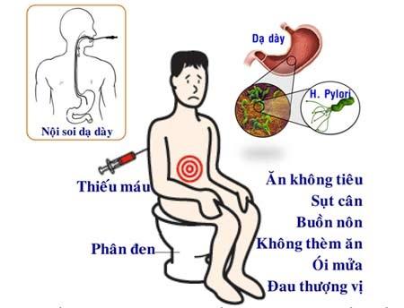 Ung thư dạ dày: Bệnh dữ ngừa được!