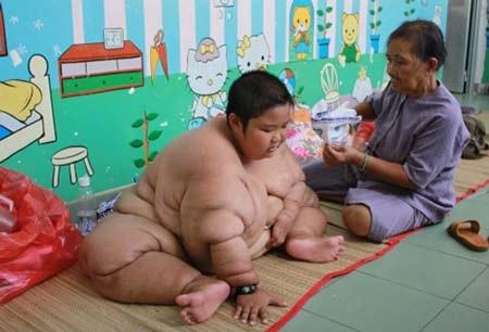 Trẻ điều trị béo phì tại Bệnh viện Nhi Đồng 1, TP HCM