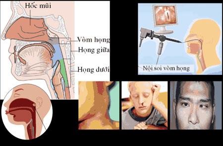 Ung thư vòm họng: Gặp bệnh trễ, đừng bi quan