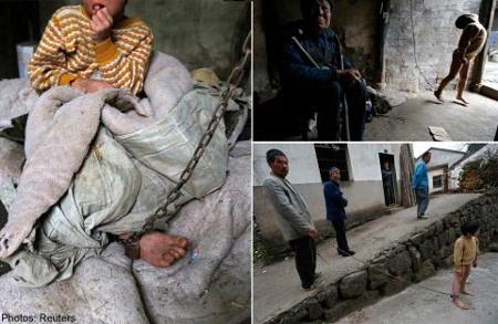 Trung Quốc: Tình cảnh thê thảm của người bệnh tâm thần