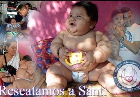 """Em bé phải điều trị gấp vì cân nặng """"khủng"""" nhất Colombia"""