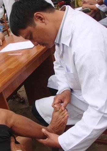 Dày sừng lòng bàn chân, bàn tay là biểu hiện nổi bật của bệnh viêm da lạ