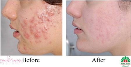 Da mặt láng mịn và sạch mụn nhờ công nghệ Healite