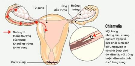 Chlamydia có thể gây vô sinh ở nữ giới