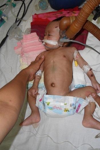 Bé H'Phich khi còn nằm điều trị tại Khoa Nhi - Bệnh viện Đa khoa tỉnh Đắk Lắk.