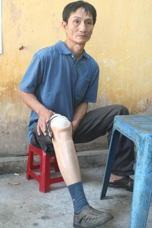 Anh Thuận với đôi chân giả vì phải cưa chân do ung thư
