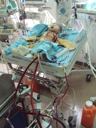 Hình ảnh mới nhất của cháu ở Khoa Gây mê hồi sức Tim, tầng 5 Trung tâm Tim mạch, BV Trung ương Huế