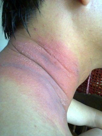 Vết cắn ban đầu của kiến ba khoang trên cổ 1 người đàn ông tại thị xã Hương Thủy, tỉnh TT-Huế