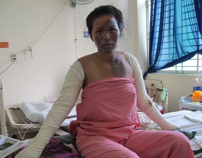 Nạn nhân Đỗ Thị Ngọc Bích bỏng nặng khi đang mang thai
