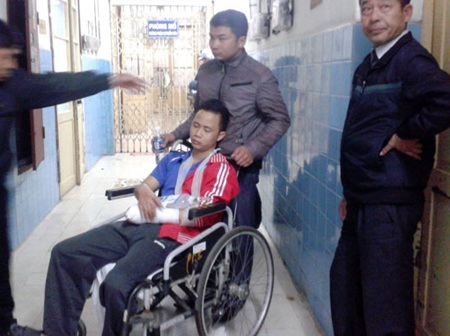 Pháo hoa que phát nổ, một thanh niên bị dập nát bàn tay