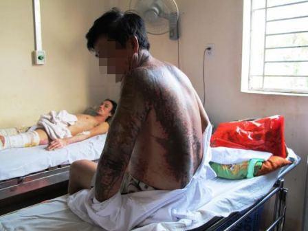 Ông Hòa (ngồi) bị phỏng axit diện tích 30% cơ thể ở vùng tay trái, lưng, cổ và mặt.