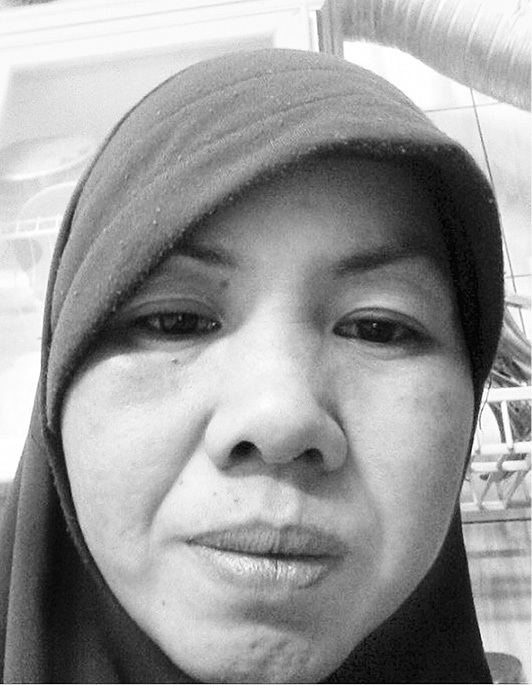 Chị Huỳnh Ngọc Bích bị chủ đánh bầm mặt vì không làm được việc khi bị ốm.Ảnh: L.Tuyết