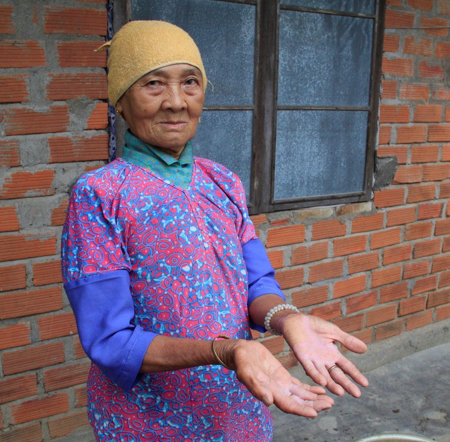 Chỉ giặt đồ mà chân tay bà Mai cũng bị lở loét vì nước ô nhiễm