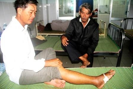 Ông Võ Văn Toán đang điều trị tại Bệnh viện Đa khoa Quảng Nam vì bị rắn lục đuôi đỏ cắn