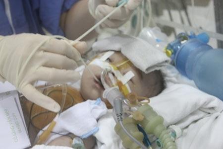 Nhiều bệnh nặng cùng lúc đã cướp đi sinh mạng của bé Khánh Linh đáng thương
