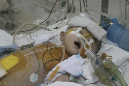 Bé Khánh Linh đang bị nhiễm trùng phổi nặng do việc thở máy đã quá lâu