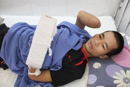 Cánh tay phải của anh Tùng đã phải cắt cụt, cánh tay trái và cả chân phải cũng khó giữ được