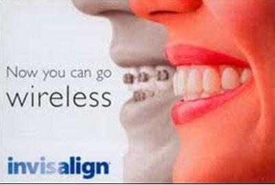Vậy hiệu quả niềng răng không mắc cài đến đâu?