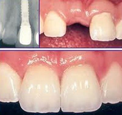Vậy quy trình cấy Implant như thế nào? Tỷ lệ thành công ra sao?