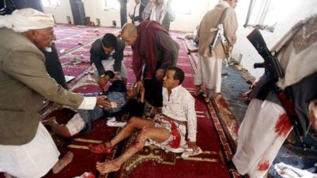 Hơn 300 người bị thương trong hai vụ tấn công (Ảnh: RT)