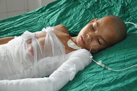 Bị 25% bỏng sâu độ 3,4, tình trạng của bé Phủ hết sức nguy kịch